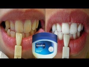 დღეში მხოლოდ 2 წუთი - კბილების გათეთრება სახლის პირობებში