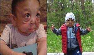 რატომ გაუკეთეს პლასტიკური ოპერაცია ექვსი წლის მოხუც-ბავშვს