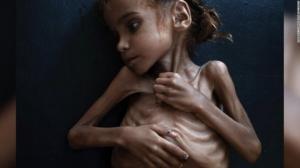 გოგონა, რომელიც იემენის კრიზისის სიმბოლოდ იქცა