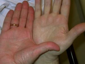 7 სიმპტომი, რომელიც დაბალ ჰემოგლობინზე მიუთითებს