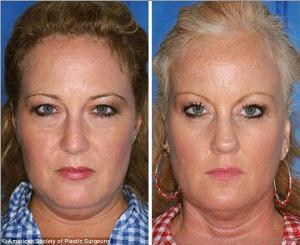 თამბაქოს უარყოფითი მოქმედება ტყუპების მაგალითზე -  ეს უნდა ნახოთ!