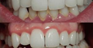 ამ მეთოდის წყალობით, ღრძილებსა და კბილებს იდეალურად გაისუფთავებთ