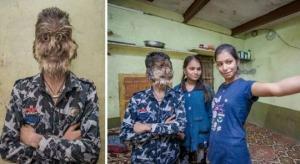 ცოცხალი მაქცია ინდოეთიდან