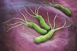 ყველაზე საშიში ბაქტერიები და ვირუსები, რომლებიც კიბოს იწვევენ