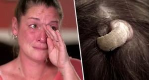 მედიცინა შოკშია: რა ამოუვიდა ქალს თავზე?