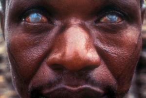 ათი ყველაზე საშინელი პარაზიტი, რომელიც შეიძლება ადამიანის სხეულში ბუდობდეს