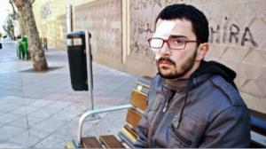 რეზინის ტყვიით თვალის დაკარგვისთვის ესპანეთში მამაკაცს 200 000 ევროიანი კომპენსაცია ერგო