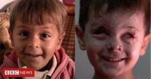 ბავშვის სახე, რომელიც  სირიაში ომის  მთელ ტრაგედიას ასახავს