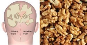 ნიგოზი, იდეალური საშუალება დეპრესიასთან და ალცჰეიმერთან ბრძოლისათვის