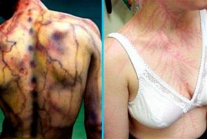 13 შემზარავი ფოტო: მეხის დარტყმის სავალალო შედეგები