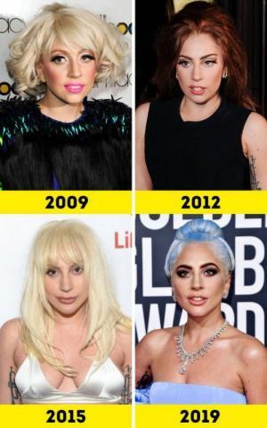 როგორ შეიცვალნენ ცნობილი მომღერლები წლების განმავლობაში