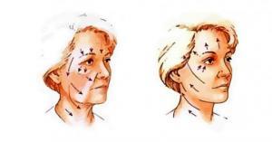 ეს საშუალება დამეხმარა სახის კანის დაჭიმვასა და ნაოჭების გაქრობაში – გაინტერესებთ როგორ?