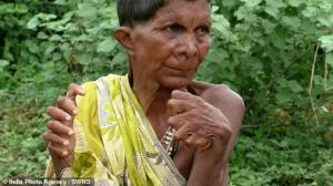 ინდოეთში ქალს, რომელსაც 31 თითი აქვს, კუდიანს უწოდებენ