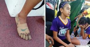 """გოგონამ ლეიკოპლასტირისგან დამზადებული """"ფეხსაცმლით"""" მოიგო სამი ოქროს მედალი"""