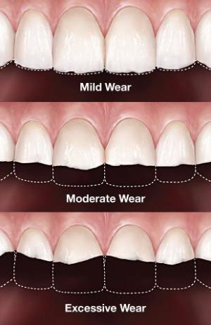 კბილის მაგარი ქსოვილების ცვეთა