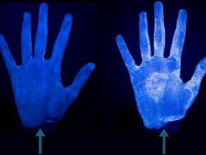 რა კლავს ბაქტერიებს: ფოტოები სადეზინფექციო საშუალების და საპნის გამოყენების შემდეგ განსხვავებას დაგანახებთ