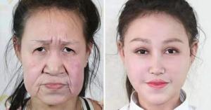 15 წლის ჩინელ  გოგონას მოხუცის სახით პლასტიკური ოპერაცია გაუკეთეს