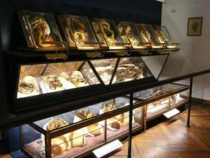 ადამიანის სხეულის უცნაური ანატომიური მოდელები-უნიკალური  სამუზეუმო ექსპონატები