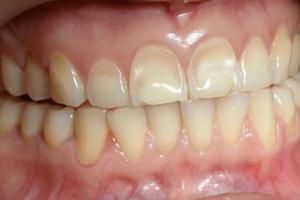 კბილების ეროზია