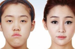 პლასტიკური ოპერაციების კულტი სამხრეთ კორეაში ( + ფოტოები)