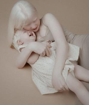 ალბინოსი დები, რომელთა სილამაზემ ინტერნეტ სივრცე დაიპყრო