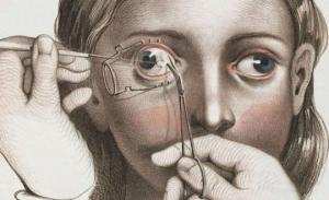 როგორ მკურნალობდნენ  ადამიანებს  მე -19 საუკუნეში: 12 შოკისმომგვრელი ილუსტრაცია, გაბედავთ მათ ნახვას?