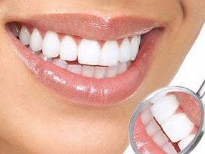 სტომატოლოგის დახმარების გარეშე  ქვების მოშორება  და  კბილების გათეთრება