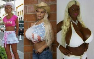 სრული სიგიჟე- როგორ გამოიყურება ქალი, რომელმაც პლასტიკურ ოპერაციებში 70 000 ევროზე მეტი დახარჯა