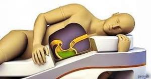 ასე აისახება თქვენს ჯანმრთელობაზე გვერდზე ძილი - ეს საინტერესოა და უნდა იცოდეთ!