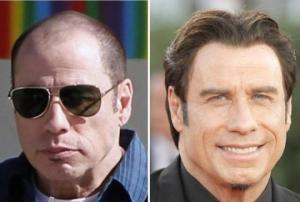 მანამდე და შემდეგ- ცნობილი მამაკაცები, რომლებმაც თმა გადაინერგეს