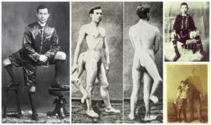 კაცი 3 ფეხით და 2 სასქესო ორგანოთი  მაყურებელმა ისე შეიყვარა, რომ მის ცოლობაზე  ლამაზმანებს შორის  ნამდვილი კონკურსი გაჩაღდა