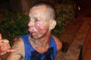 """მძარცველს აშკარად შეეშალა მისამართი, გოგონა რომლის გაძარცვასაც ის  შეეცადა """"UFC""""-ის მებრძოლი აღმოჩნდა, შედეგიც სახეზეა"""