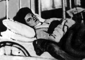 """""""ტიფოიდ მარიამი"""": რა დაემართა სასიკვდილო დაავადების ყველაზე საშიშ ასიმპტომურ მატარებელს"""
