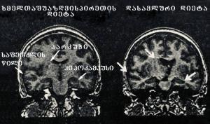 რატომ განსხვავდება ამ ორი ქალბატონის ტვინი და რა საკვებს იღებდნენ ათწლეულების მანძილზე