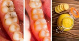 დაივიწყეთ გაშავებული და დაზიანებული კბილები, საოცრად ეფექტური საშუალება