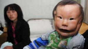 """ორსახიანი """"ნიღბიანი"""" ბავშვი ჩინეთიდან"""
