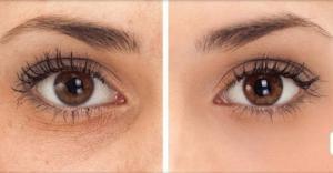გაიქრეთ შავი წრეები თვალების ქვეშ. დაემშვიდობეთ ჩაშავებულ თვალებს ხალხური მედიცინის მეშვეობით
