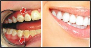 მოიშორეთ კბილებიდან ნადები და სიშავე  5 წუთში, მარტივი სასწაულმოქმედი საშუალება