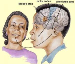 მეტყველების დარღვევები თავის ტვინის ლოკალური დაზიანებების დროს