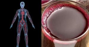 სასმელი, რომელიც სიკვდილისაგან გიხსნით. უამრავი დაავადების მკურნალი საშუალება