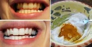 გაითეთრეთ კბილები და სამუდამოდ დაივიწყეთ კბილებისა და ღრძილების დაავადებები, მარტივი და უსწრაფესი საშუალება