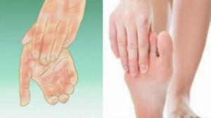 """რატომ """"გეყინებათ""""  ხელები ან ფეხები ხშირად და როგორ გავუმკლავდეთ ამ პრობლემას"""
