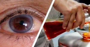 გადააგდეთ თქვენი სათვალე! ეს ნივთიერებიბი დაგეხმარებათ მხედველობის გაუმჯობესებაში