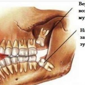 სიბრძნის კბილის ამოღება არ შეიძლება! აი რატომ!