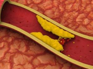 ათეროსკლეროზის ადრეული სიმპტომები: დაეხმარეთ თქვენს სისხლძარღვებს