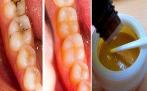 აღიდგინეთ დაზიანებული კბილები , უსწრაფესი მეთოდი კარიესისა და ნადების მოსაშორებლად