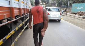 ინდოელი მამაკაცი უზარმაზარი ხელით