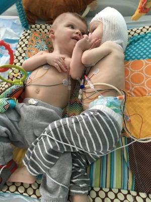 სიამის ტყუპებმა ერთმანეთი პირველად 13 თვის ასაკში დაინახეს (+ვიდეო)