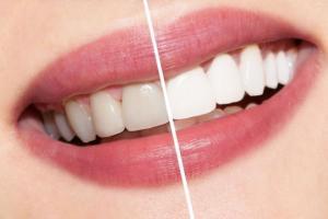 გაითეთრეთ კბილები 2 წუთში და სამუდამოდ დაივიწყეთ  ნადები, მხოლოდ ერთი ინგრედიენტით მომზადებული სითხე