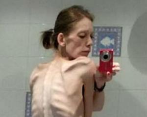 ანორექსიიით დავადებული ქალი წელიწადნახევარში ბოდიბილდერი გახდა